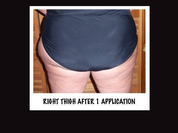 It Works Body Applicators Before and After on Thighs