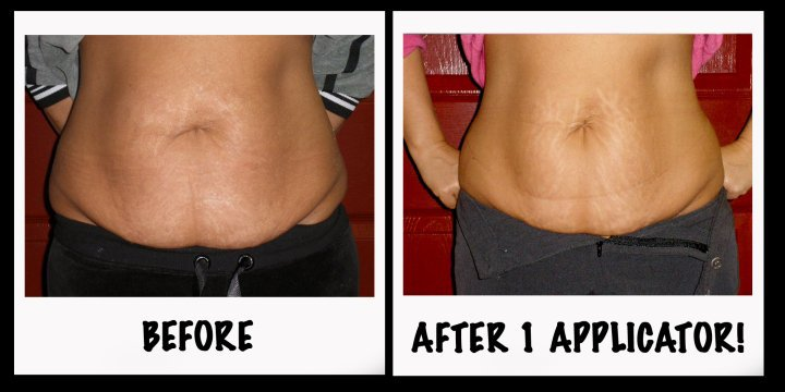 It Works Body Applicators Before and After