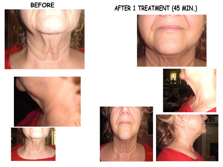It Works Chin Applicators Before and After