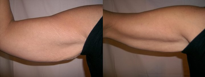 It Works Body Applicators Before and After on Arms