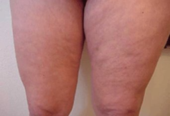It Works Body Applicators Before and After on Legs